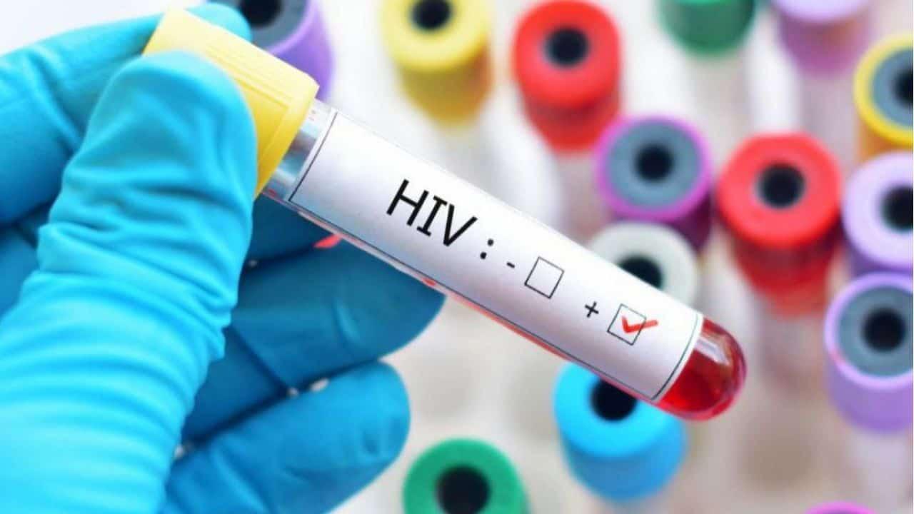 Acordare spor HIV/SIDA – TBC